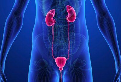 膀胱癌發病率和死亡率的全球趨勢-專家評論
